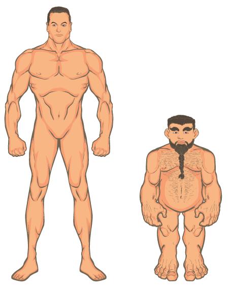 Think, anatomy of a midget